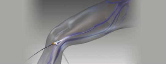 静脈にカテーテルを入れているイメージCG